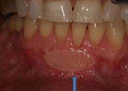 picture of restored gum tissue