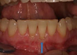picture of patient with thin gum tissue