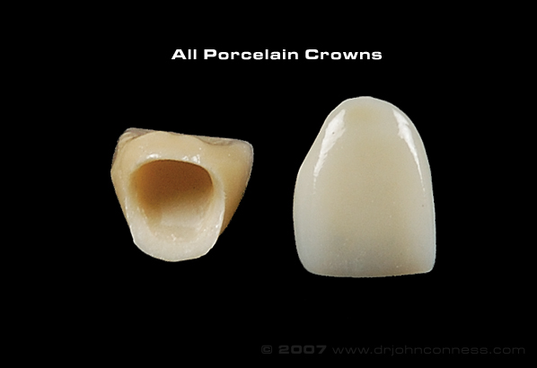 picture of porcelain crowns on black background