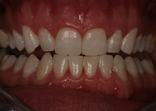 Close up of a full set of teeth showing gums, after teeth bleaching
