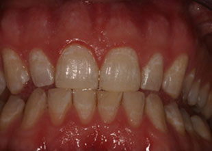 picture of a patient before teeth whitening treatment