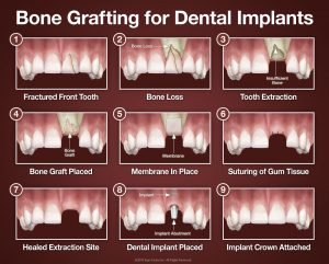 infographic showing the 9 steps of completing a bone graft for dental implants