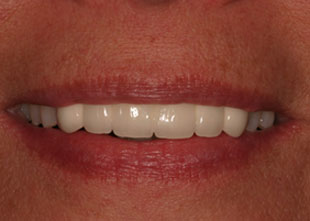 after picture of a successful dental bridge placement