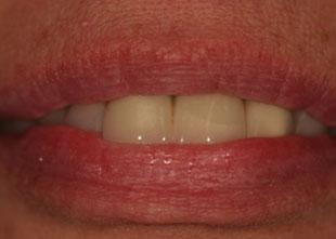 patient before dental bridges picture