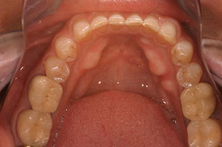 before picture of patient getting crowns