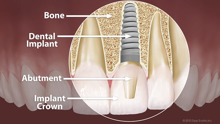 diagram of dental implant structure in teeth