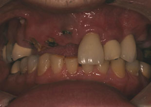 close-up of patient's smile before full-mouth reconstruction treatment