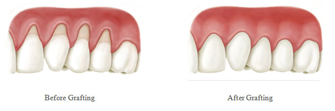 virtual model of teeth and gums before and after gum grafting