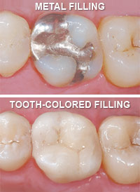 photo comparing metal and tooth colored fillings