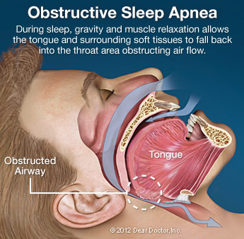 infographic showing the effects of obstructive sleep apnea
