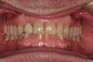 picture of patients teeth before veneers