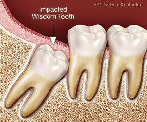 Wisdom Tooth Extraction with Dr. Conness | Ottawa, IL