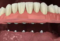 virtual model of teeth-in-a-day dentures being secured onto dental implants