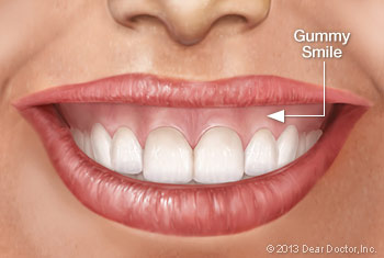 Graphic of a woman's teeth, showing a gummy smile