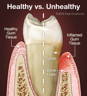 Graphic of a full tooth showing tartar, bone loss, and comparing healthy and inflamed gums