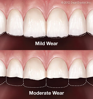 infographic comparing the effects of mild to moderate tooth wear