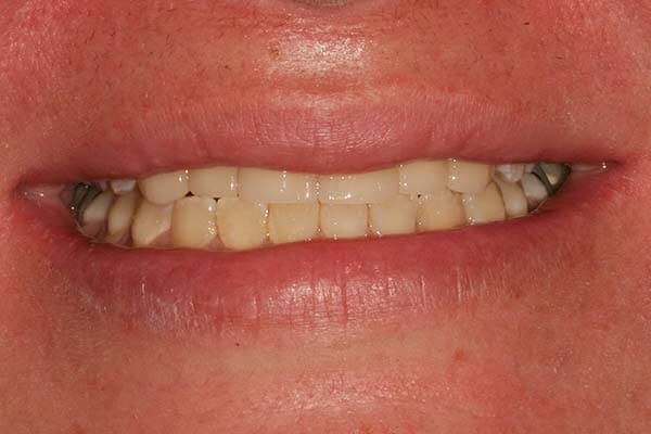 close-up of patient's smile after receiving anterior restorations