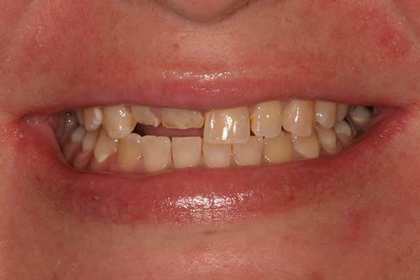 Close up of a woman's smile with short/broken front teeth