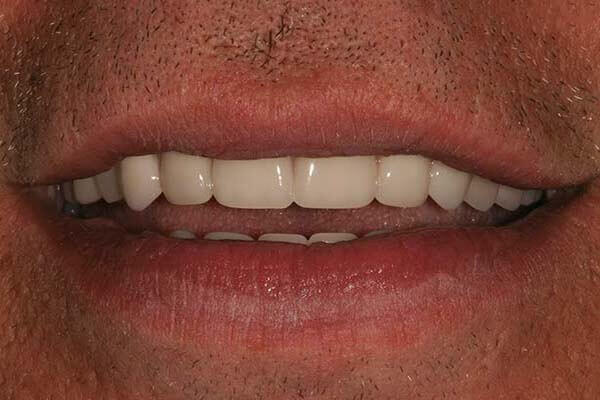 close-up of patient's smile after full-arch replacement