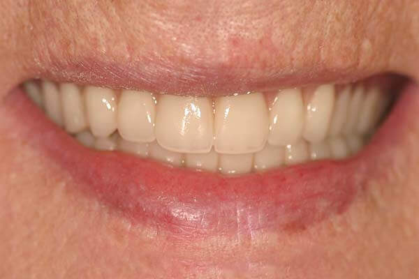close-up of patient's smile after getting overdentures