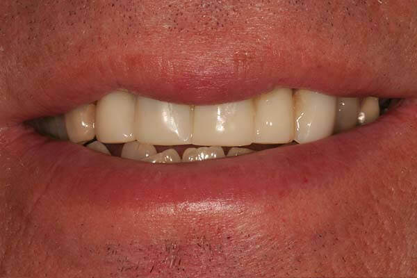 after picture of a patient who had a restoration
