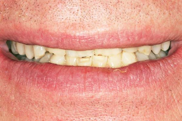 close-up of patient's smile before getting veneers